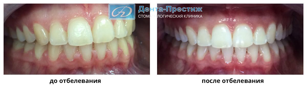 Отбеливание зубов Beyond Polus фото до и после, Дента-престиж