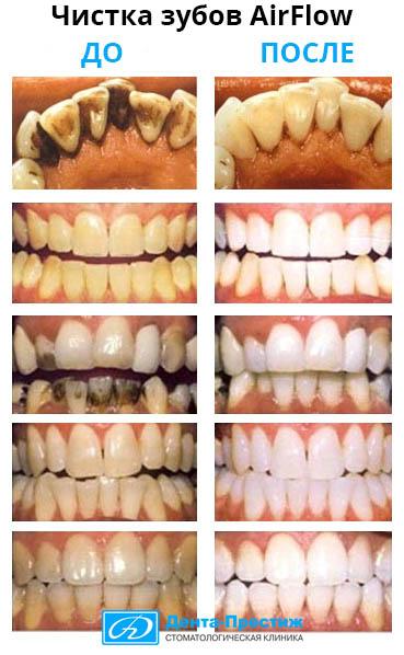 Чистка зубов AirFlow фото до и после, Дента-Престиж