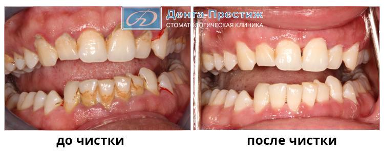 гигиена зубов и полости рта цена