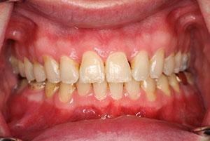 Исправление прикуса в Москве в стоматологии Дента-Престиж