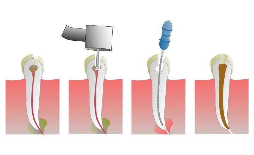 удаление нерва зуба цена