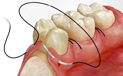 сложное удаление зуба цена