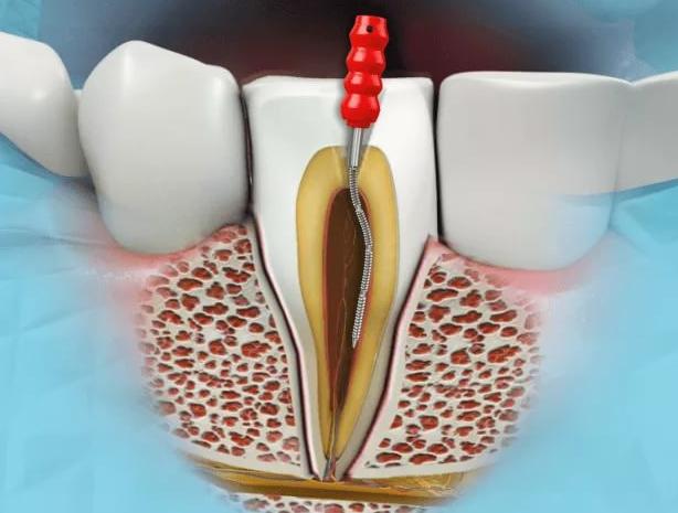 эндодонтия зубов