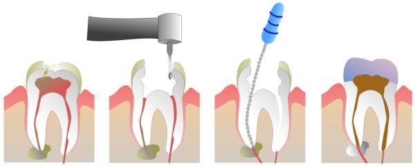 Последовательность эндодонтического лечения зубов