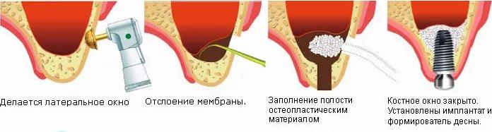 открытый синус лифтинг зубов