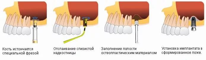 закрытый синус лифтинг зубов